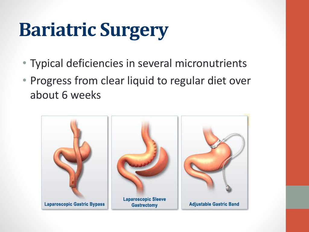 Bariatric Surgery Typical deficiencies in several micronutrients